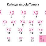 Zespół Turnera – czym jest i czy da się go wyleczyć?