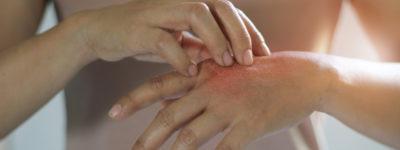 Czerwone, szorstkie, suche dłonie u dziecka – skąd ten problem?