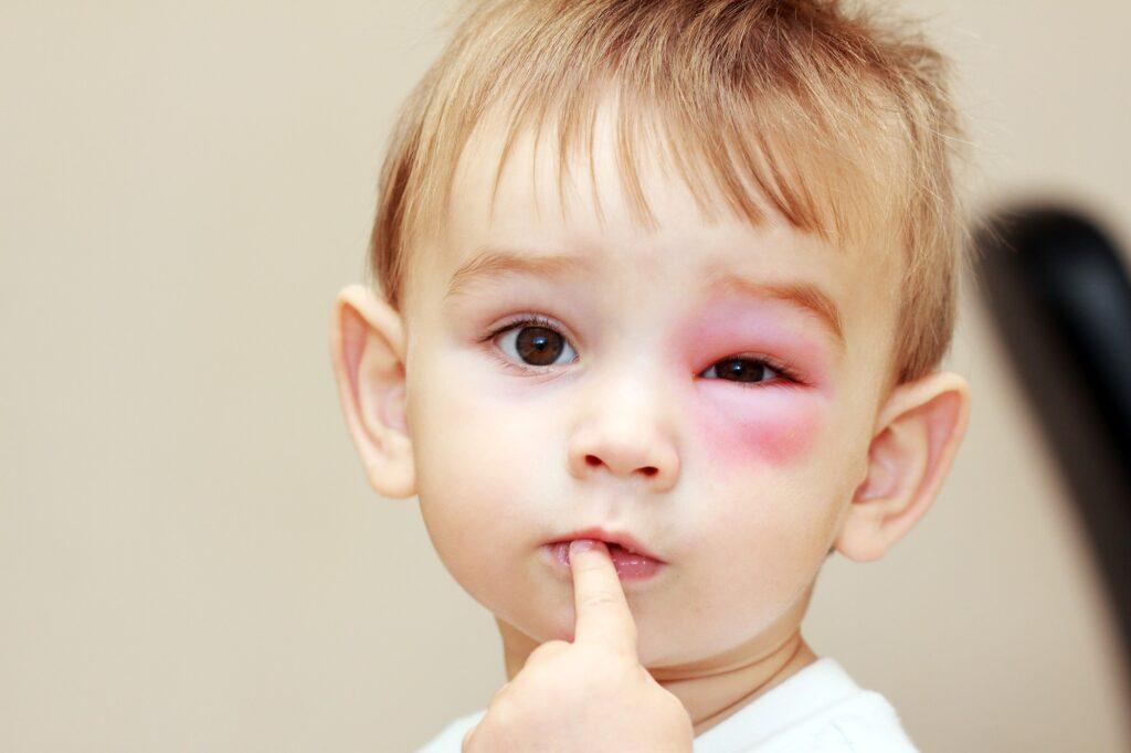 Alergia na jad owadów u dzieci